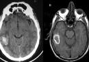 Setyo Widi Nugroho : Operasi Otak Saat Pasien Sadar di RS Hasan Sadikin